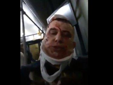Sabiha Gökçen Havalimanı'ndaki uçak kazasında yaralanan yurttaştan tepki: Otobüslerle götürüyorlar, rezillik