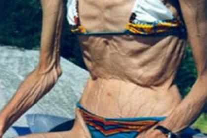 Anoreksiya kabusu