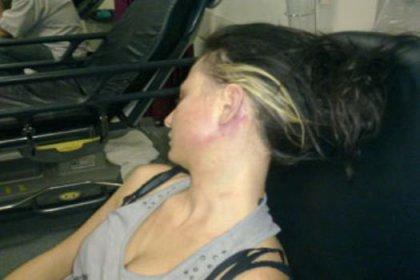 Genç kadına işkence