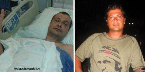 'Gezi'de polisin attığı demir bilye ile gözünü kaybetti, yaşadıklarını anlattı