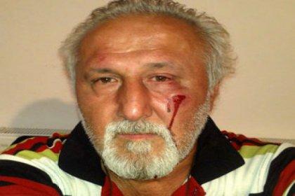 AKP'li başkandan gazeteciye yumruk!