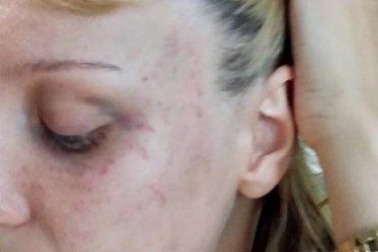 Şiddet mağduru kadına: Kocandır döver