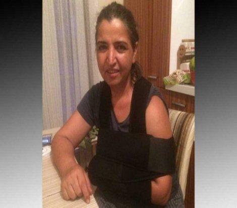 Elvan: Kolumun kırılmasına rağmen hastaneye ters kelepçeyle götürüldüm