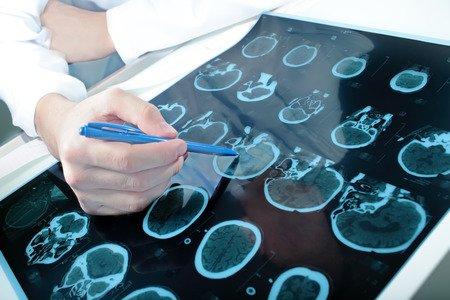 Türkiye'de 10 kişiden 1'i 'epilepsi bulaşıcı' dedi!