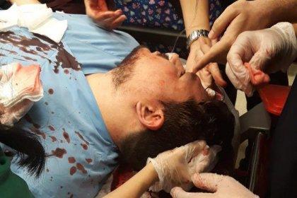 Çocuğun ateşi düşmeyince doktorun başında parke taşı parçaladı!