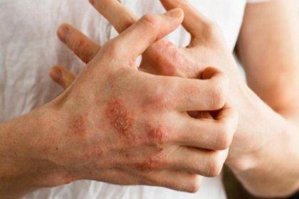 Egzamadan korunmak için 12 önlem