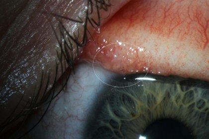 İlk kez bir insanda 'Thelazia gulosa' adlı göz parazitine rastlandı