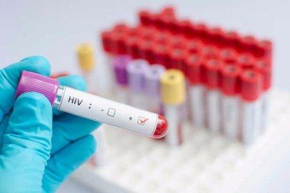 Türkiye'de 15 bin kişi HIV virüsü taşıyor