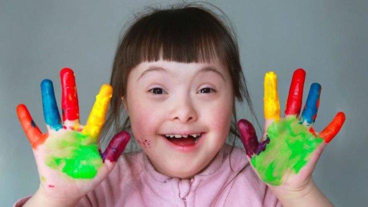 21 Mart Dünya Down Sendromu Günü: Hastalık değil, genetik bir farklılık!