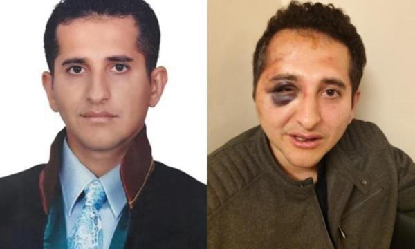 Erdoğan'ın korumalarından 'yolu neden kapattınız' diye soran avukata dayak!