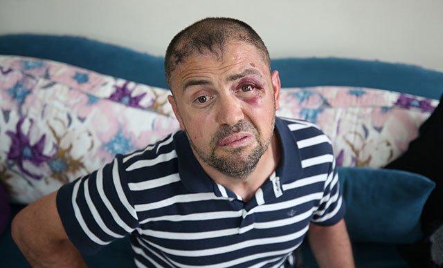 Gaziye kafede demirle saldırdılar