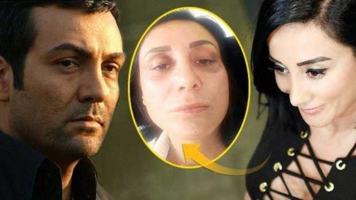 Saruhan Hünel'in mesajı ortaya çıktı: Seni döverken kendimi de sakatladım!