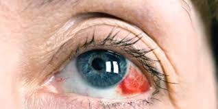 Yılda bir kez göz tansiyonunuzu ölçtürün