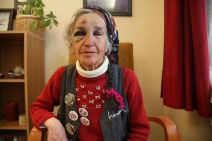 76 yaşındaki Perihan Pulat'ı darp eden polisten pişkin savunma: Uzaklaştırmak için ittim, yerler ıslaktı ayağı kaymış olabilir