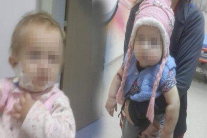 Anneden 1,5 yaşındaki bebeğe kan donduran işkence, akıl almaz savunma: 'Kızıma bir türlü ısınamadım, ölmesi için yaptım'