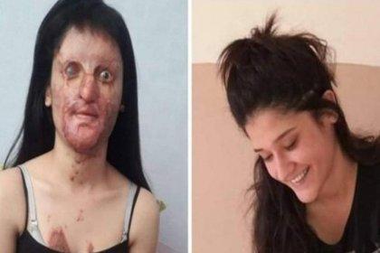 Berfin Özek: Benim yüzüm kazada yanmadı. Bir erkeğe 'hayır' dediğim için yüzüm yakıldı