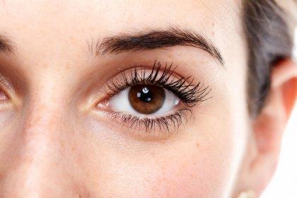İri gözler tiroit hastalığı habercisi olabilir