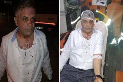 İYİ Partili meclis üyesi, 4 kişinin saldırısına uğradı