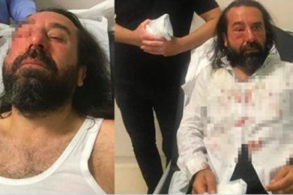 MHP'den İmamoğlu'nu destekleyen ülkücülere tehdit