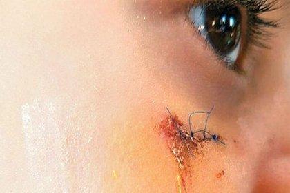 Öğrencisini yüzüne kitapla vurarak yaralayan öğretmen 6 yıla kadar hapisle yargılanıyor