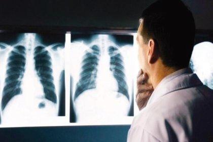 Röntgen ile kanser riski arasında bağ tespit edildi