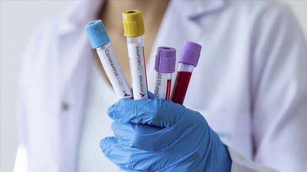 'Aynı hastanede üç enfeksiyon uzmanından ikisi koronavirüs tedavisi görüyor'