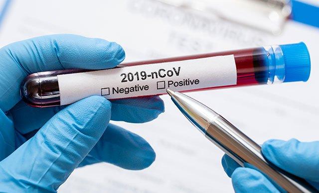 Dünya genelinde koronavirüsten van kaybı 524 bin 188'e yükseldi