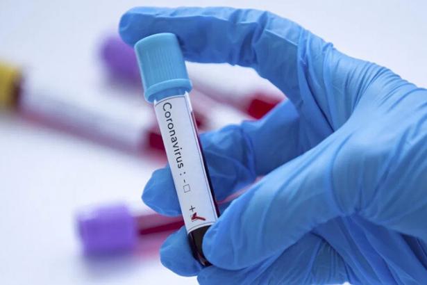 Ermenistan'da ilk koronavirüs vakası görüldü