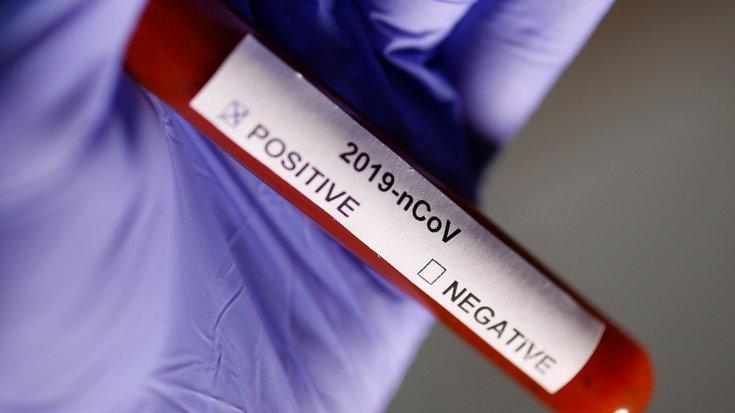 Lagos Devlet Sağlık Komiseri: Nijerya'da Koronavirüs taşıdığı tespit edilen ilk kişi İstanbul'dan geldi