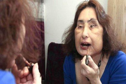 ABD'de ilk yüz nakli yapılan Connie Culp hayatını kaybetti