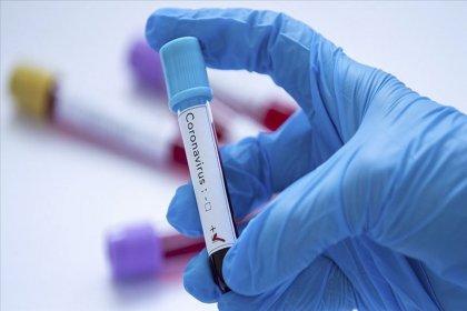 Almanya'da koronavirüs vaka sayısı 10 bini aştı