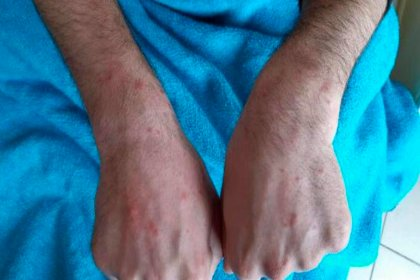 Cerrahpaşa'da koronavirüs hastalarının deri bulguları incelendi
