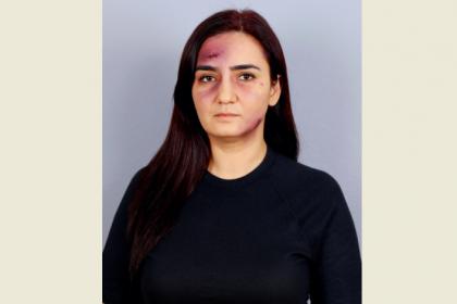 CHP İzmir Milletvekili Sevda Erdan Kılıç: 'Kadına şiddeti aklama, suça ortak olma'