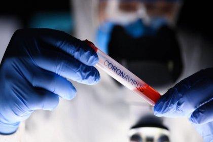Dünya genelinde koronavirüsten can kaybı 398 bin 260'a yükseldi
