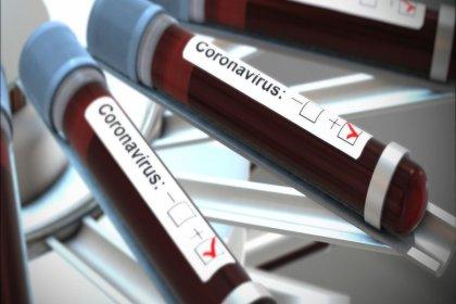 Koronavirüs (COVID-19) Enfeksiyonu tanısı nasıl konur?