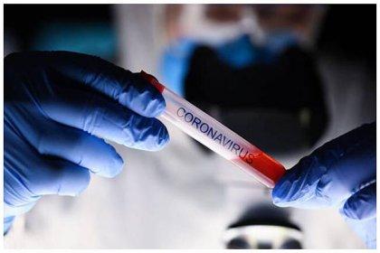Koronavirüs salgınında ölü sayısı 34 bin 5'e yükseldi