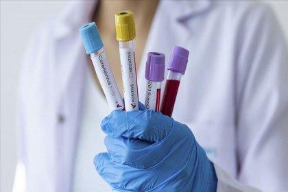 'Koronavirüs üç-beş günde bir kişiden 625 kişiye bulaşıyor'