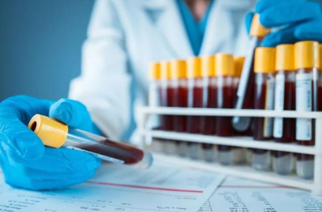 Belirtiler ortaya çıkmadan önce 50'den fazla kanser türünü tespit edebilen test geliştirildi