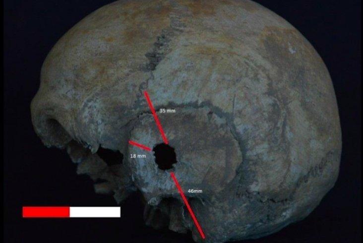 İzmir'deki antik Nif Dağı insanları hangi hastalıkları geçirdi?