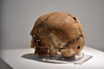 9 bin 500 yıl önce beyin ameliyatı geçiren kadının yüzü balmumu ile canlandırılacak