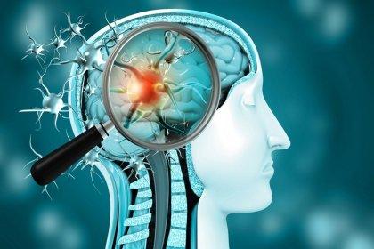 Covid geçirenlerin beyninde gri madde ve doku kaybı görülüyor