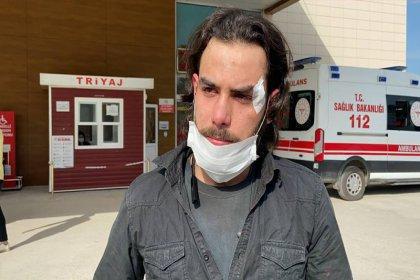 Maaşını isteyen Suriyeli işçi patronu tarafından dövüldü