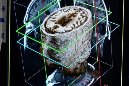 Yapay zekâ, demans hastalığını 'bir günde tespit edebilir'