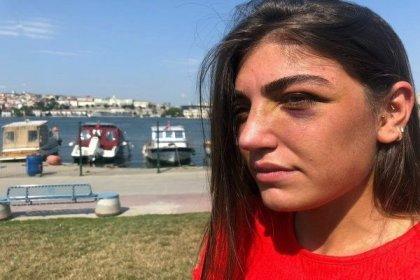 Yine erkek vahşeti: Manken Gizem Akbaş, eski sevgilisi tarafından darp edildi